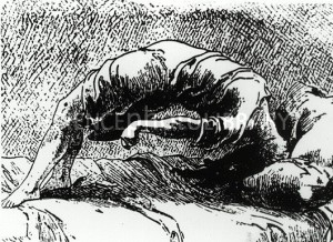 A 19th century woman enduring a seizure. (sciencephoto.com)